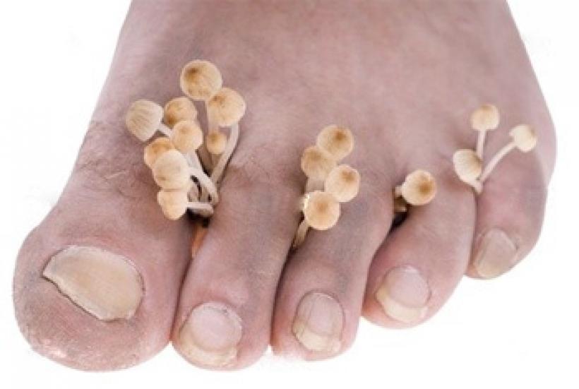 Чем лечить позеленевший ноготь
